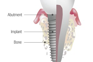 tooth-dental-implant-32