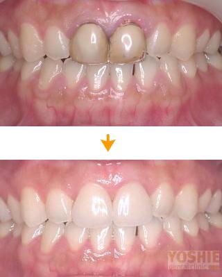 ホワイトニング後に前歯2本のジルコニアセラミックへの再修復です。治療費は約27万円
